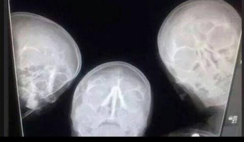 Radiologie: vom Fall zur Diagnose