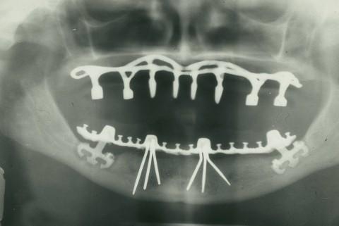 Schrauben im Kiefer – Über einen Kurs der Implantologie