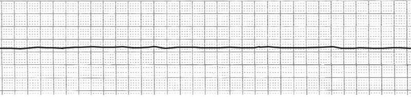EKG Ableitung einer Asystolie