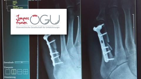 Umfrage zur Übergangsregelung Orthopädie und Unfallchirurgie