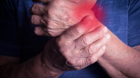 Biologika und Biosimilars bei chronischer Polyarthritis
