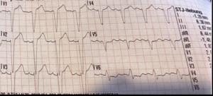 EKG interpretieren