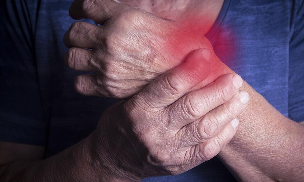Patient mit chronischer Polyarthritis